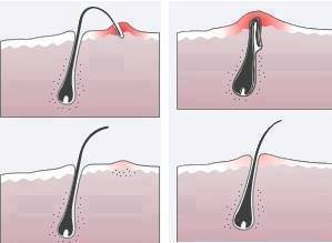 Ingrown Hairs can cause unsightly blemishes and cause pain.